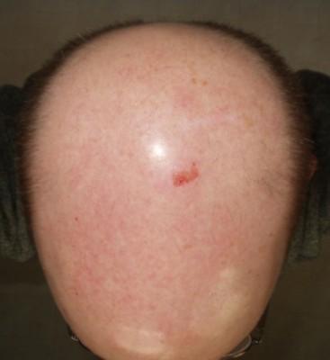 My scraped head